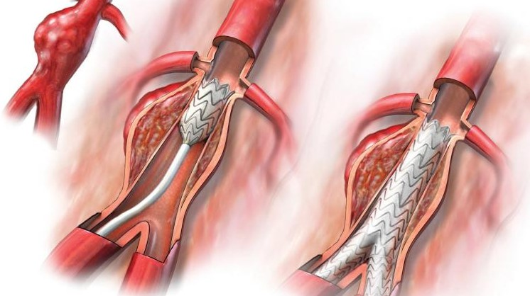 Аневризма артерії нирки