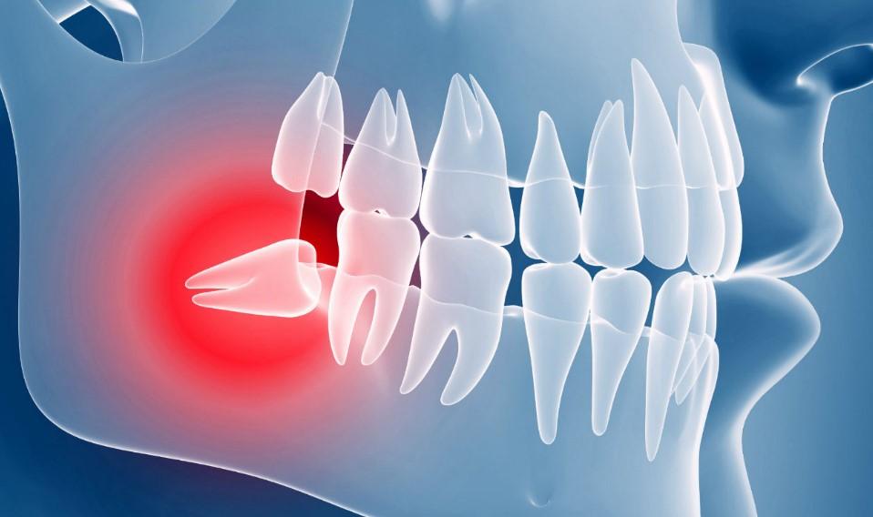 Ретінірованний і дістопірованний зуб: що це?