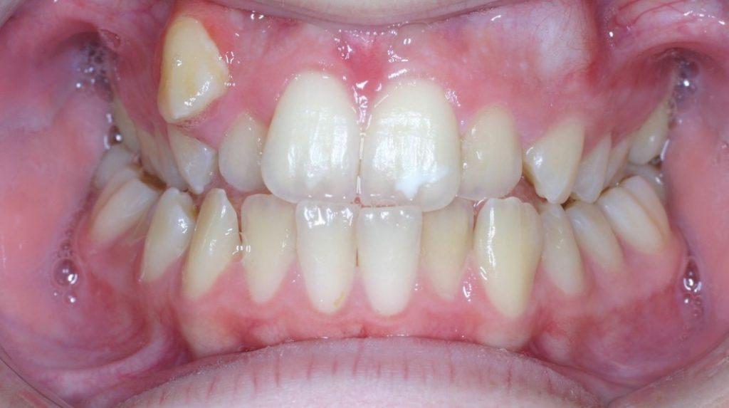 Дістопія зуба: причини, лікування