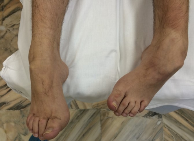 Деформація гомілковостопного суглоба
