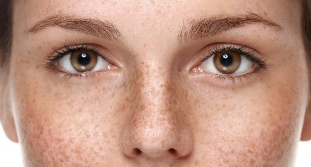 Гіперпігментація шкіри