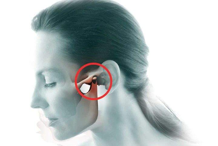 Анкілоз скронево-нижньощелепного суглоба