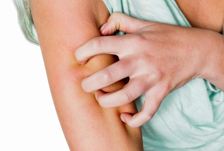 Алергічний васкуліт
