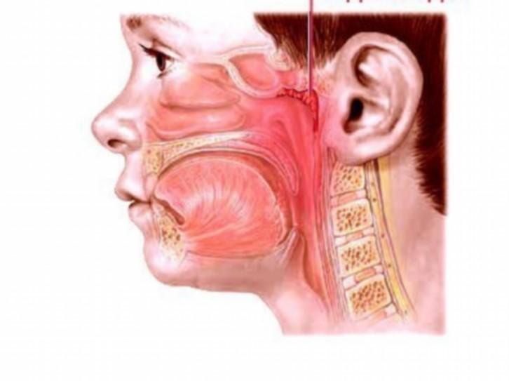 Як позбутися від аденоїдів без операції?