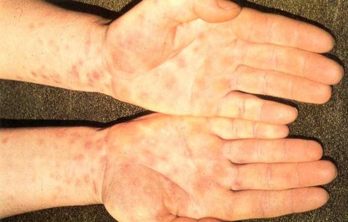 Хламідійна інфекція у статевого партнера