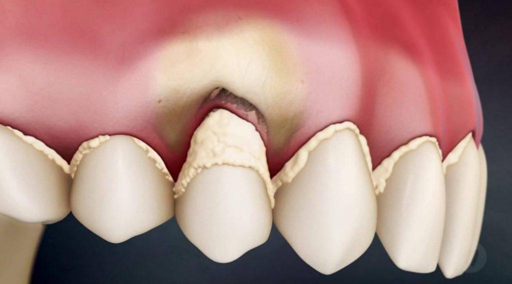 Зубний наліт і камінь - основна причина