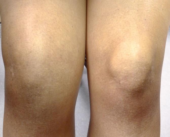 Синовит колінного суглоба: симптоми та причини