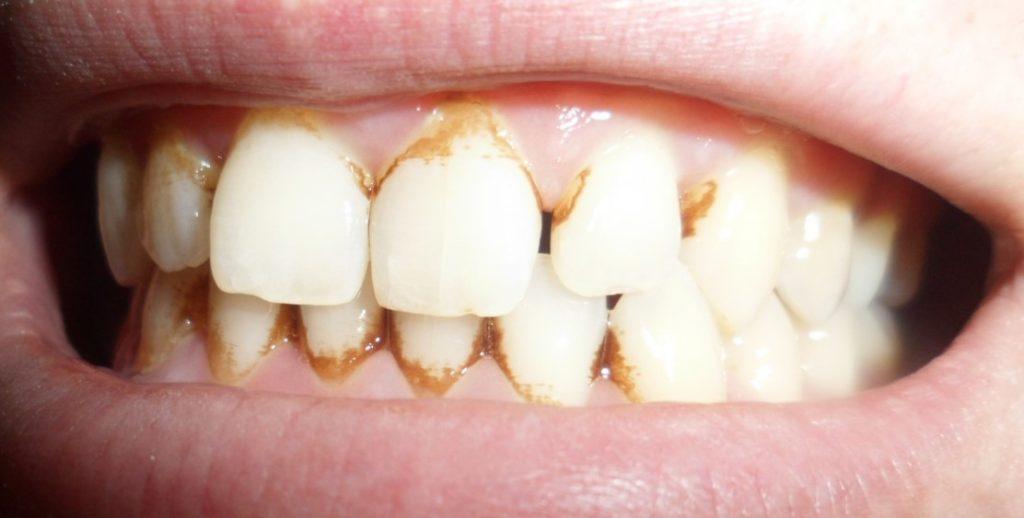 Видалення зубного каменю в домашніх умовах