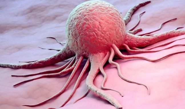 Аденокарцинома кишечника: види