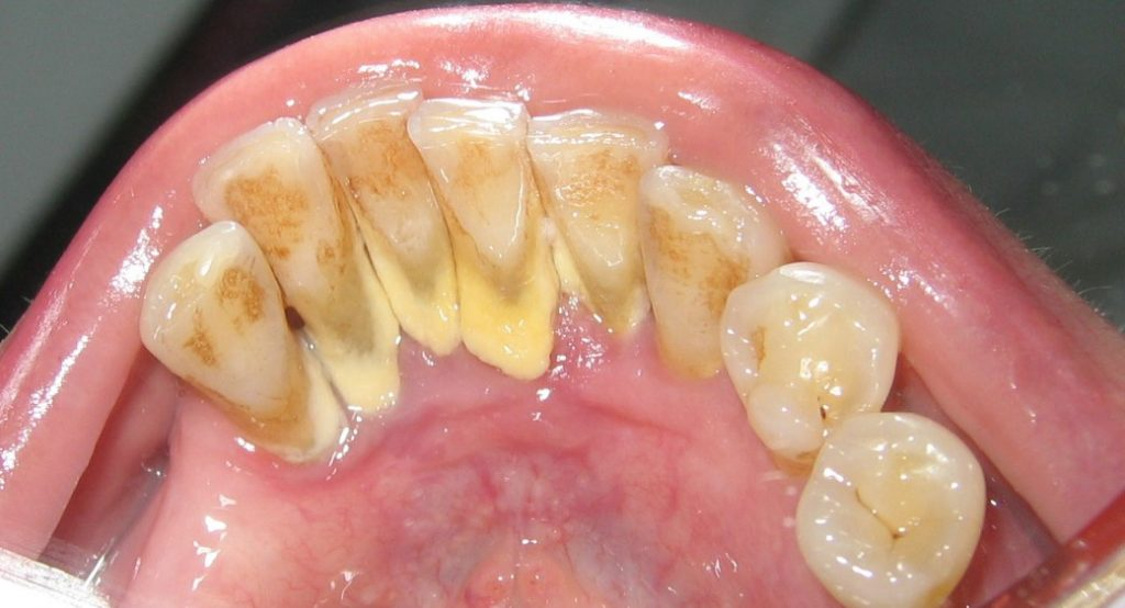 Чистка і видалення зубного каменю