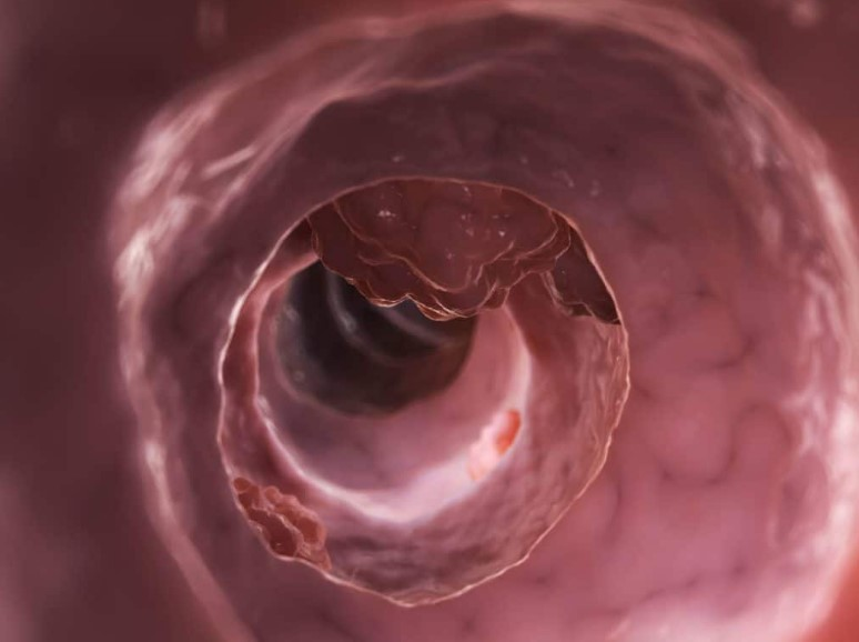 Симптоми аденокарциноми кишечника