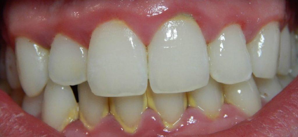 Зубний наліт і камінь: як виявити