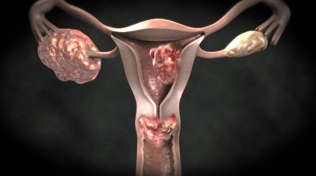 Аденокарцинома матки: симптоми, діагностика
