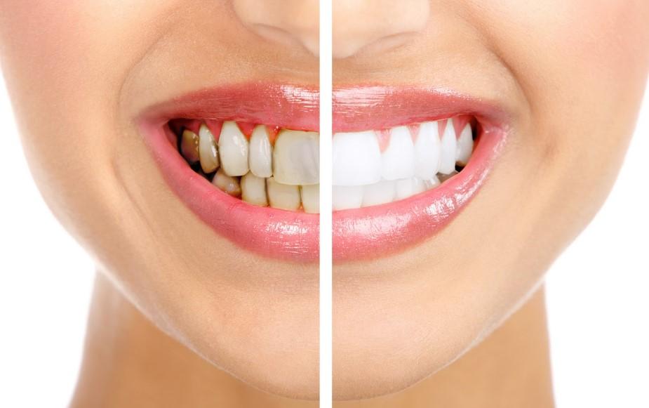 Як видалити зубний наліт в домашніх умовах?