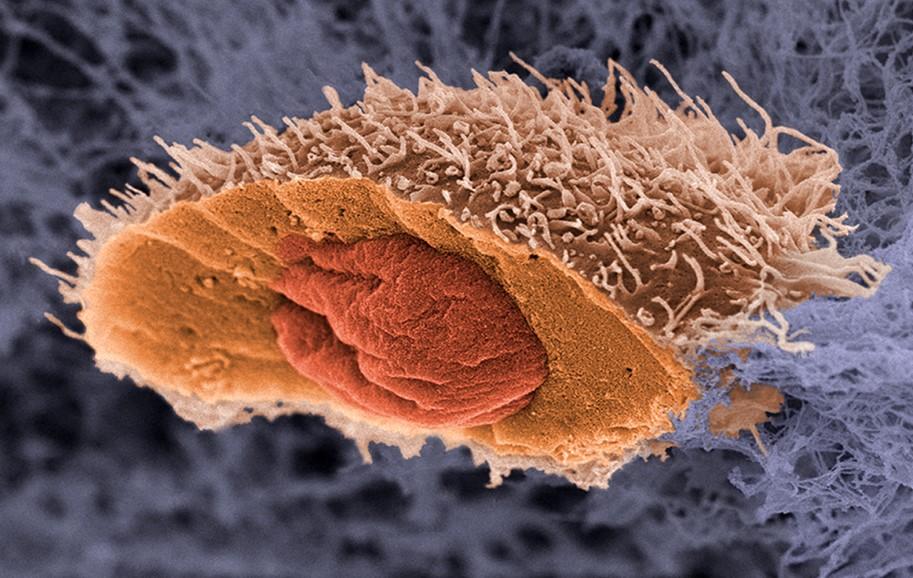 Аденокарцинома (залозистий рак), що це таке?