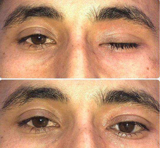 Протезування очей
