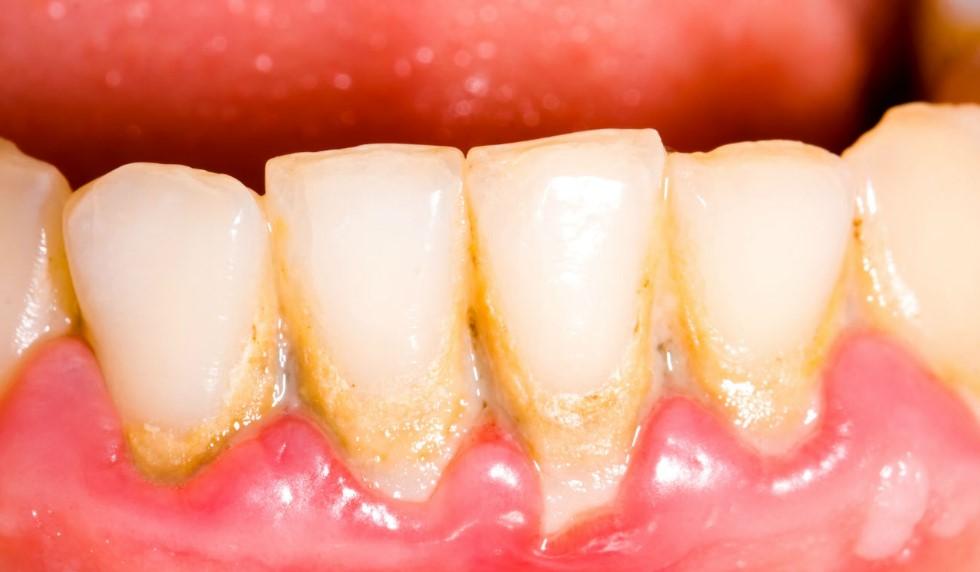 Зубний наліт: зняття або видалення зубного нальоту