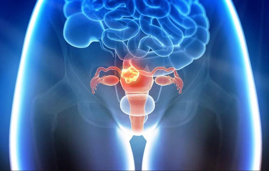 Рак матки: симптоми, причини