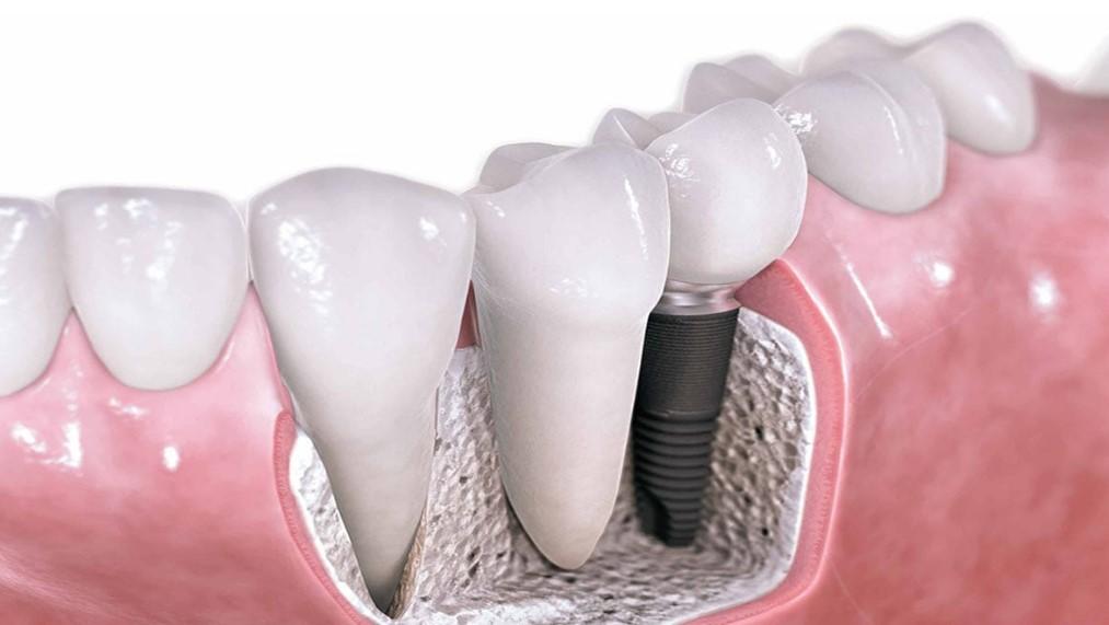 Відторгнення зубних імплантів: симптоми