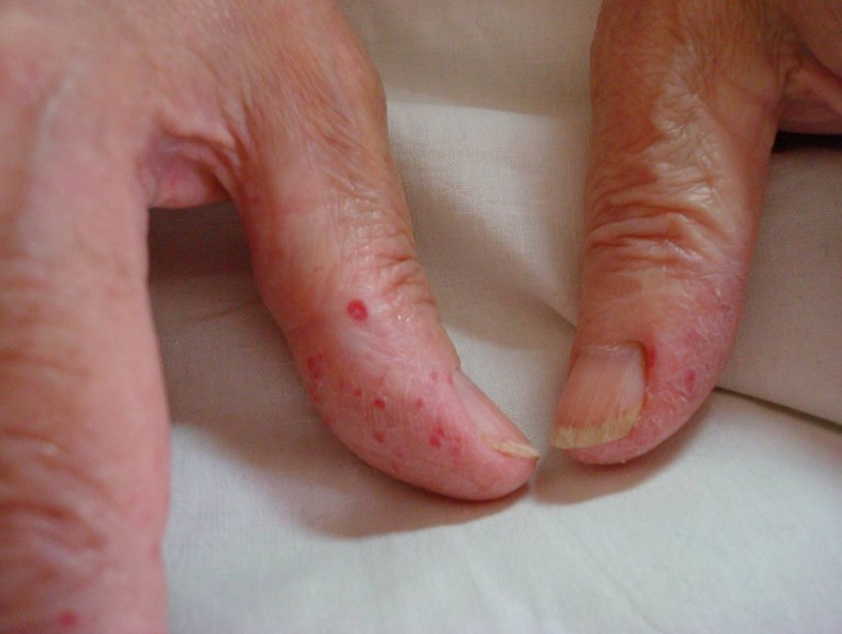 Хвороба Ранд - Ослера - симптоми хвороби