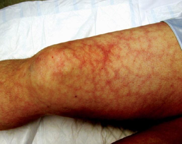 Антифосфоліпідний синдром: причини
