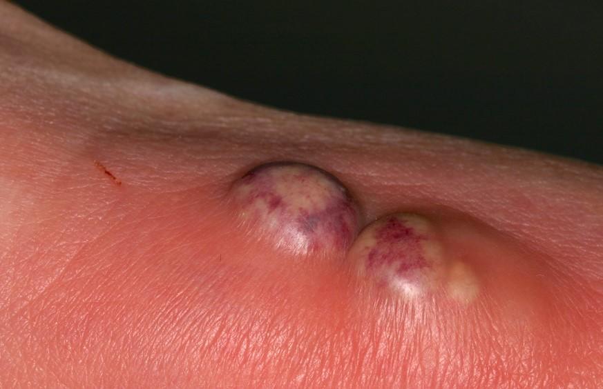 Причини виникнення абсцесу шкіри?