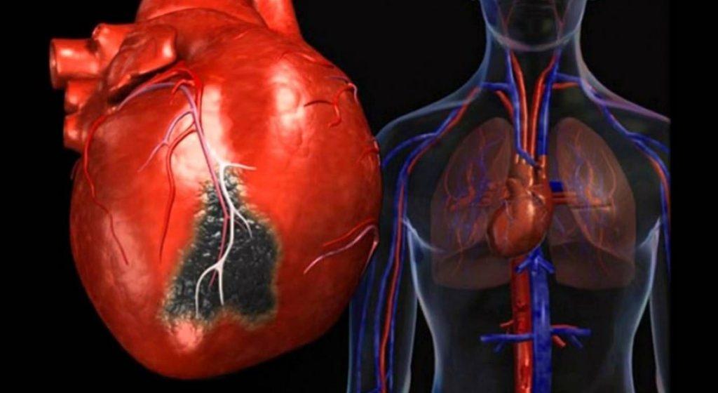 Серце з запаленим м'язом при міокардиті