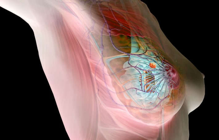 Дифузна мастопатія молочних залоз