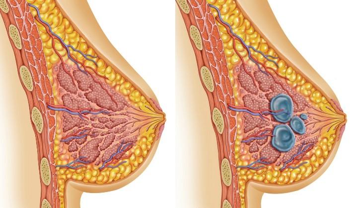 Мастопатія молочної залози: що це таке і як це лікувати