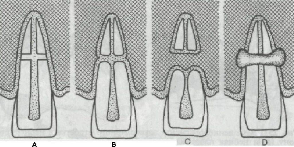 Види травматичних переломів кореня зуба