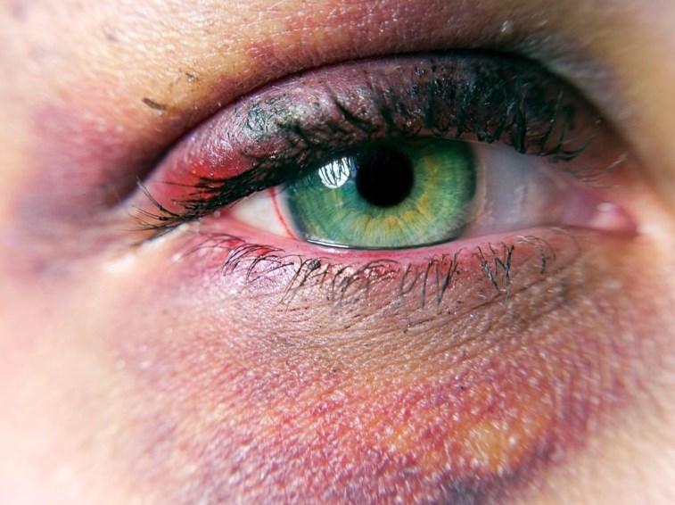 Травми очей: чим загрожують і як їх лікувати?