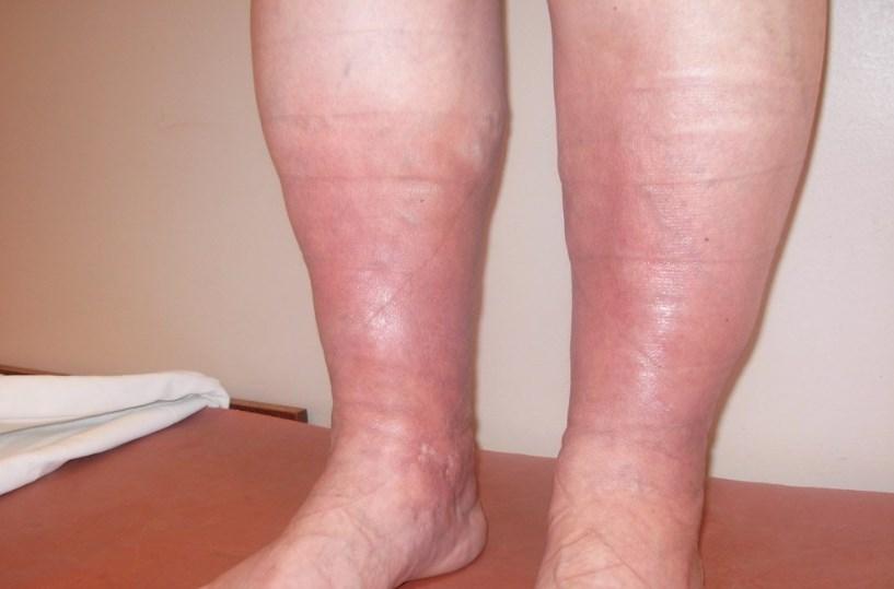 Васкуліт на ногах: лікування в домашніх умовах