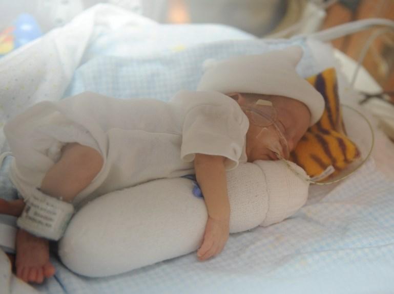 Гіпоксія плода і асфіксія новонародженого