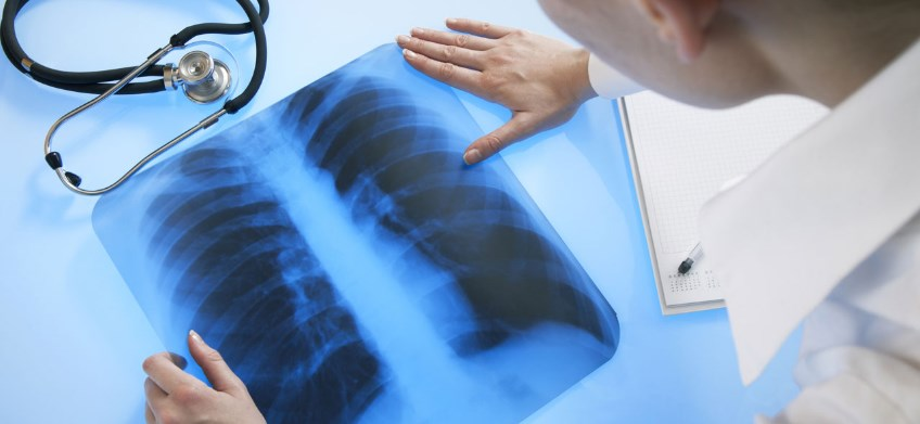 Гістоплазмоз: причини, симптоми, діагностика, лікування