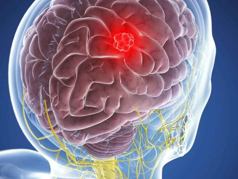 Причини утворення гематом головного мозку
