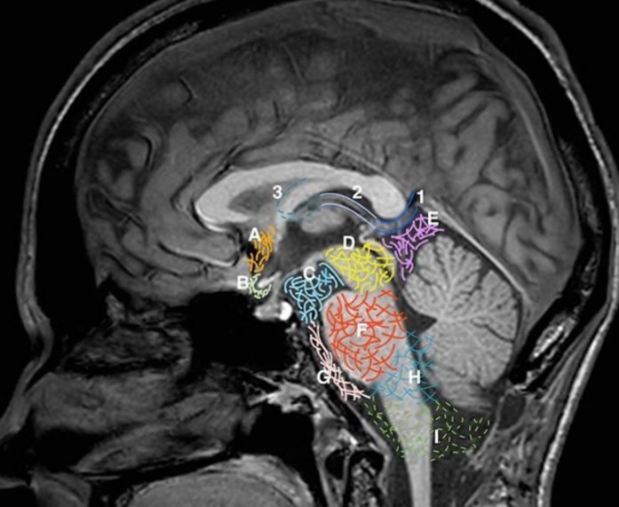 Атрофія задньої частини кори головного мозку
