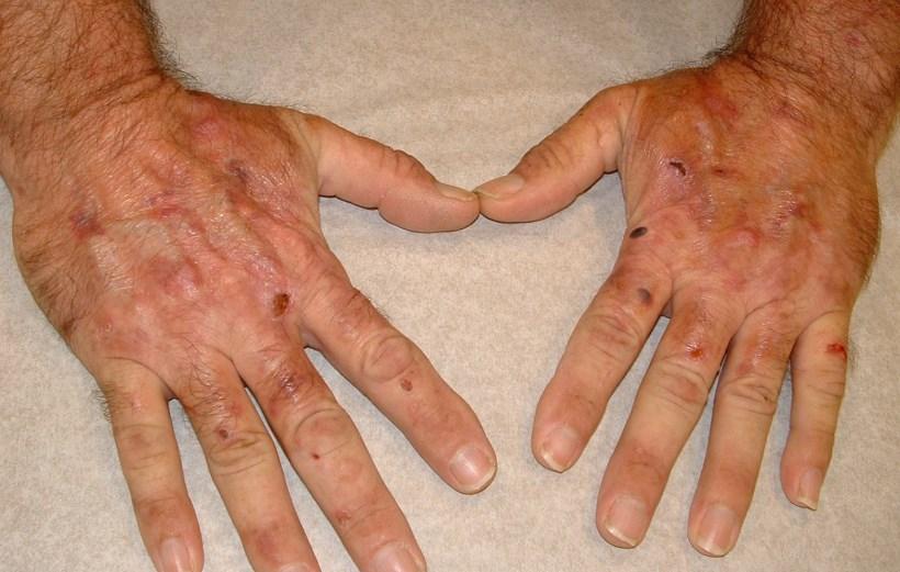 Гемохроматоз - причини, симптоми, діагностика та лікування