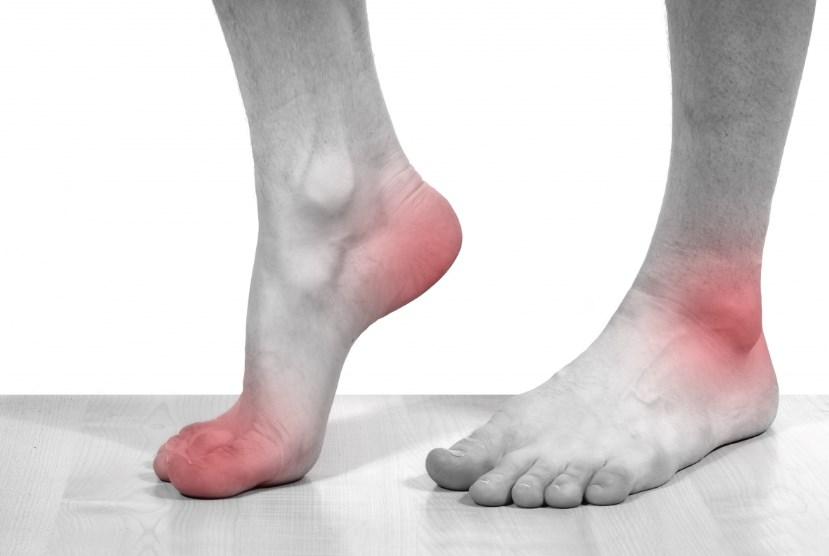 Ахіллобурсіт – причини виникнення і лікування