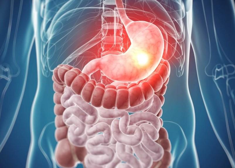 Ахлоргідрія: причини, симптоми, діагностика, лікування