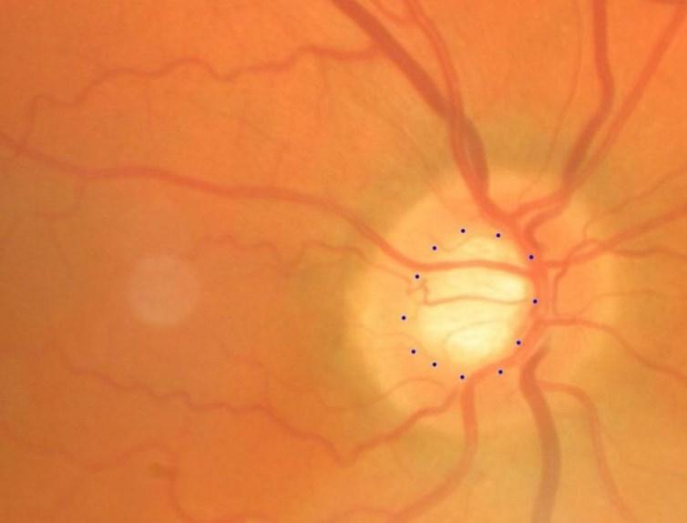 Запалення зорового нерва: неврит