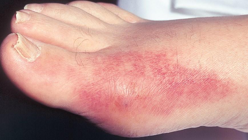 Атрофія шкіри - симптоми, причини, лікування
