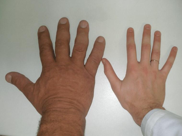 Хвороби гіпофіза, Акромегалія і гігантизм