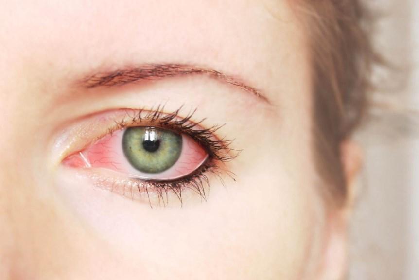 Гіпертонічна ретинопатія: симптоми і рекомендації