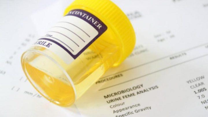 Ацетонемічний синдром – хвороба чи спосіб життя?