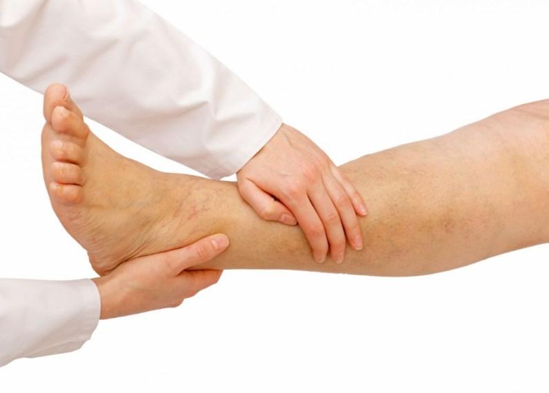 Захворювання артерій нижніх кінцівок