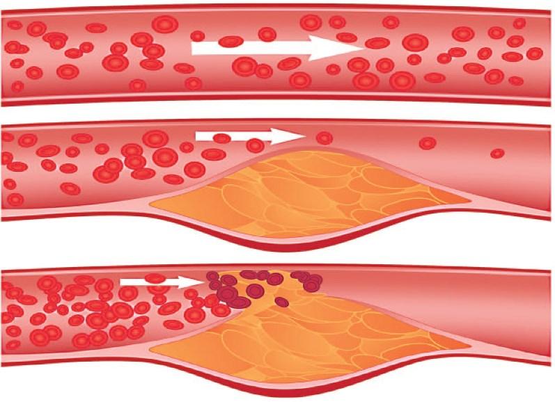 Атеросклероз судин нижніх кінцівок: симптоми і лікування