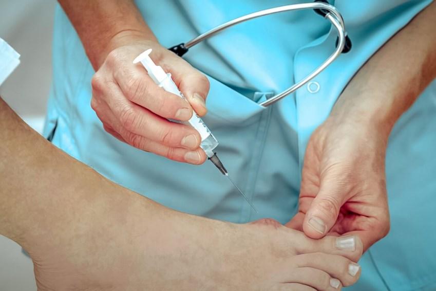 Гігрома стопи: симптоми і лікування