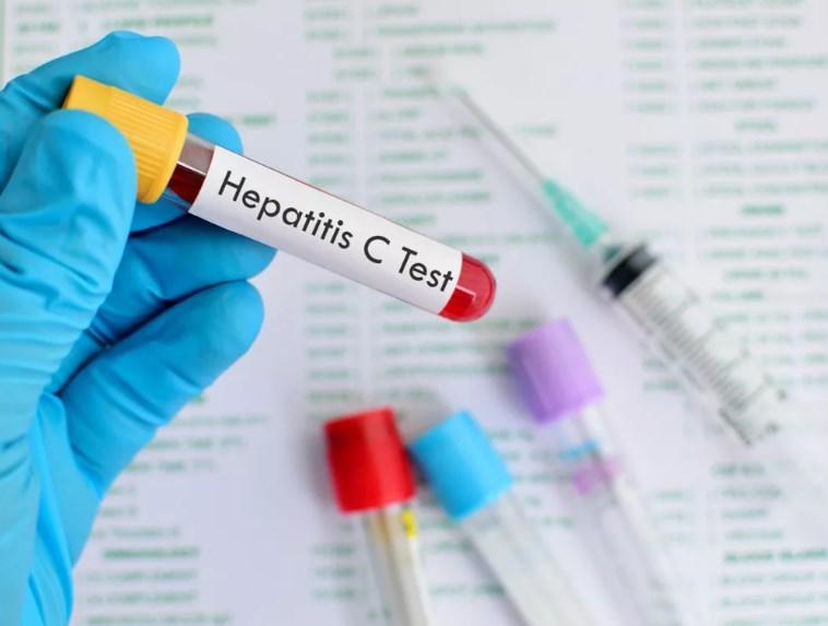 Гепатит С, Anti-HCV антитіла до вірусу