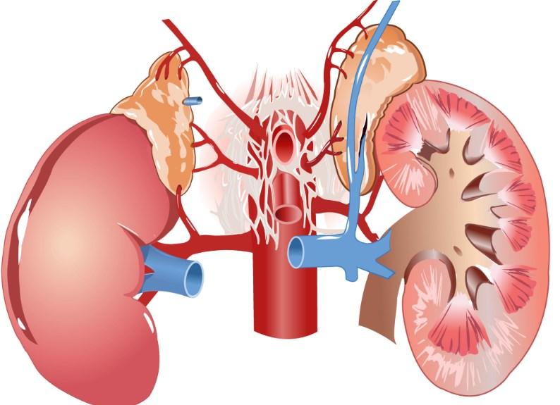 Причини, симптоми і лікування гідронефрозу