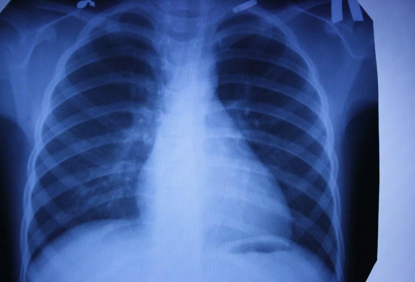 Ідіопатичний гемосидероз легень. Діагностика. Лікування